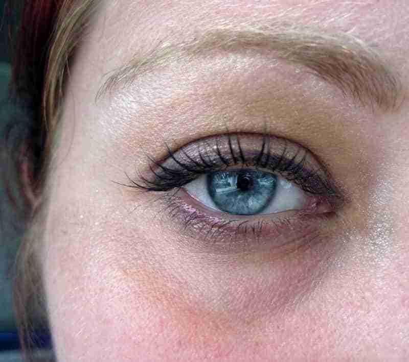 how to get rid of dark eye circles